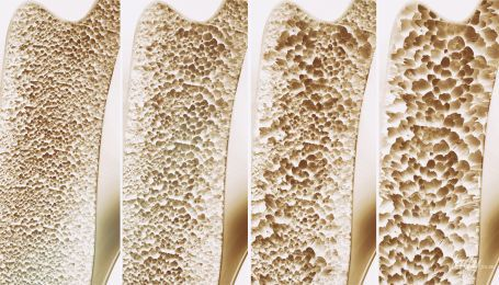 Остеопороз: зона ризику, профілактика, лікування і спеціальна дієта