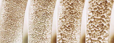 Остеопороз: зона риска, профилактика, лечение и специальная диета