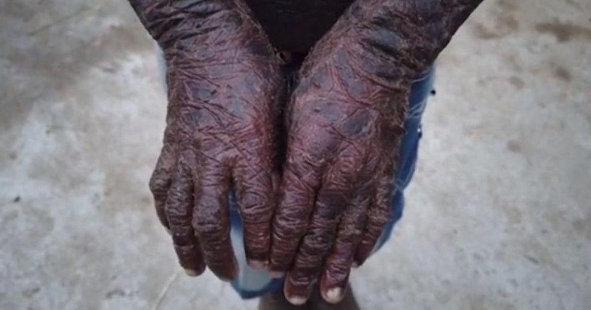 """Шкіра, як у змії: в Індії десятирічний хлопчик вкрився """"лускою"""" через невиліковну хворобу"""