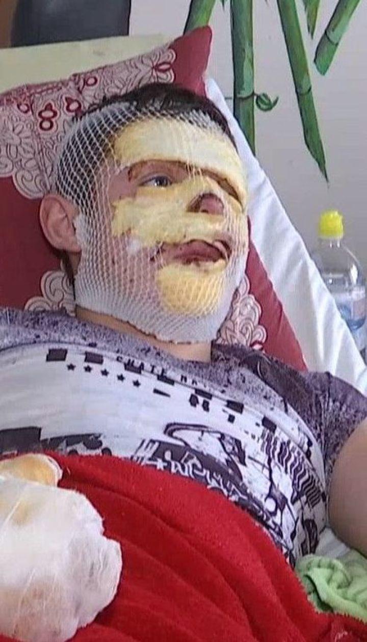 ТСН узнала эксклюзивные подробности геройского поступка после взрыва газа в сельском клубе Угрынива