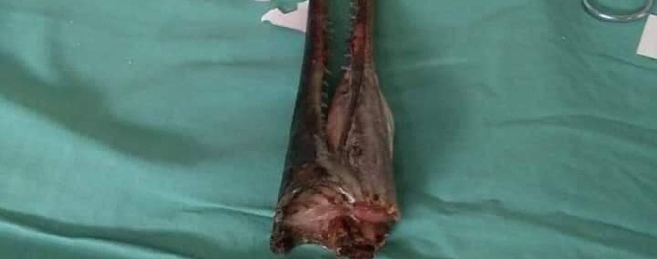 В Індонезії риба з гострою щелепою пронизала шию 16-річного хлопця