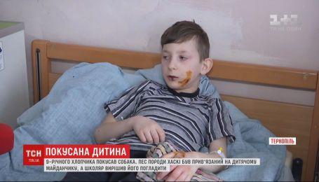 9-летний школьник в Тернополе хотел погладить привязанную собаку - та покусала ребенка