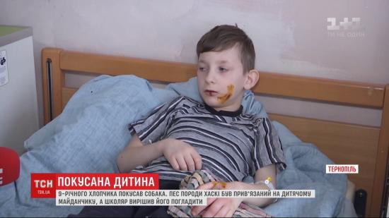 Погриз обличчя та тіло. На дитячому майданчику в Тернополі агресивний пес напав на школяра