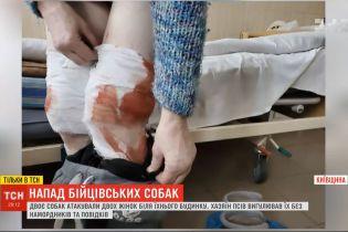 Прогулянка без намордників і повідків: бійцівські собаки напали на жінок на Київщині
