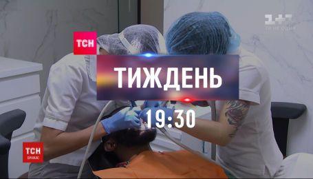 Почему иностранцы едут к украинским стоматологам - ТСН.Тиждень расскажет о цене красивой улыбки