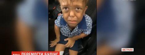"""""""Хочу убить себя"""". Звезды поддержали австралийского мальчика с карликовостью, который едва не убил из-за буллинга"""