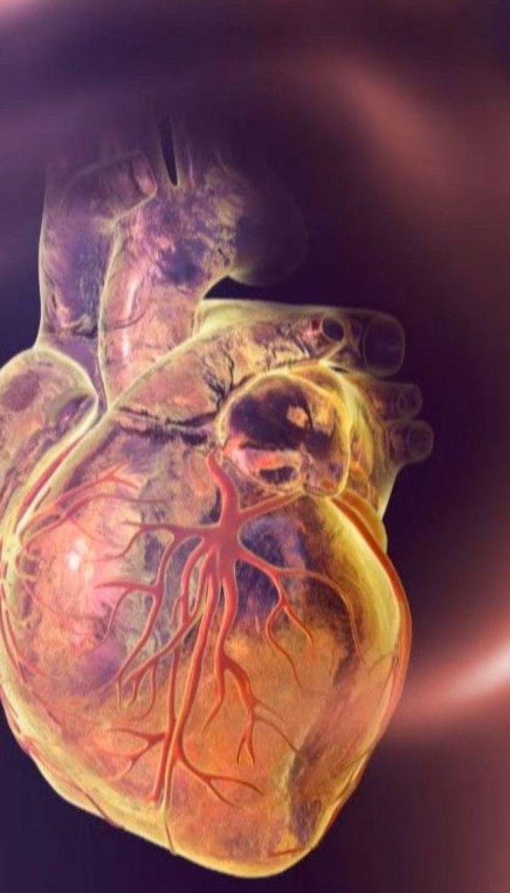 Порятунок для людей із хворобами серця: в Україні з'явилися унікальні лікарі і безкоштовне стентування