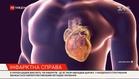 Спасение для людей с болезнями сердца: в Украине появились уникальные врачи и бесплатное стентирование