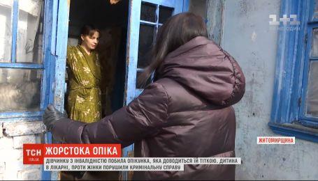 В Житомирской области ребенка с инвалидностью побила опекунша, которая приходится ей тетей