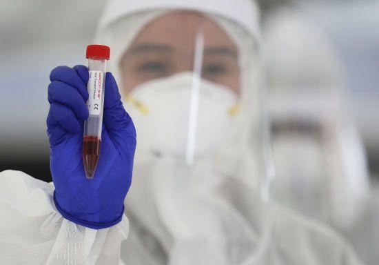 Британія схвалила тест, який визначає наявність антитіл до коронавірусу
