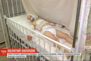 В реанимации в Днепре спасают двухлетнего малыша, который обжегся кипятком