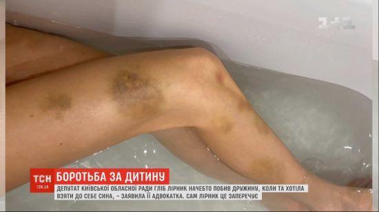 Київський депутат побив свою дружину на очах у дитини: він все заперечує, а вона подала до суду