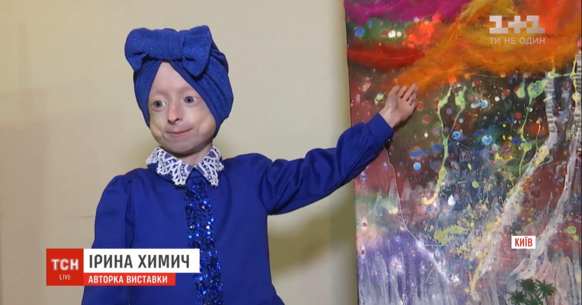 Українські лікарі зробили унікальну операцію 10-річній Іринці Химич, яка хворіє на прогерію
