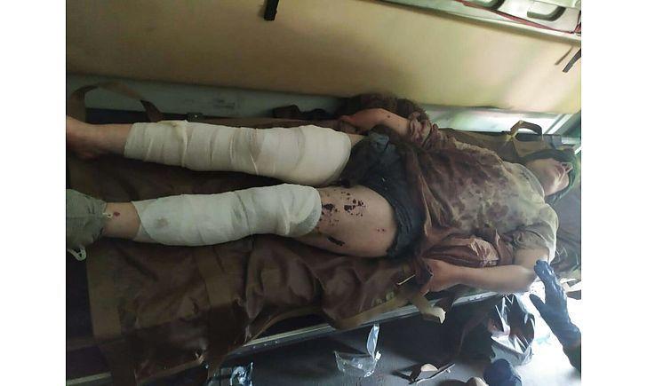 поранена жінка на Донбасі_2