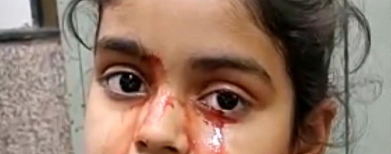 В Індії 11-річна дівчинка плаче кров'ю, і ніхто не знає чому
