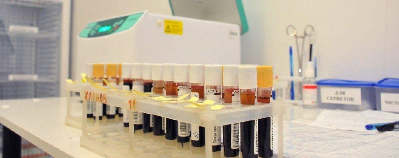 В Ровенской области коронавирусом заразились еще почти шесть десятков человек от 1 до 72 лет