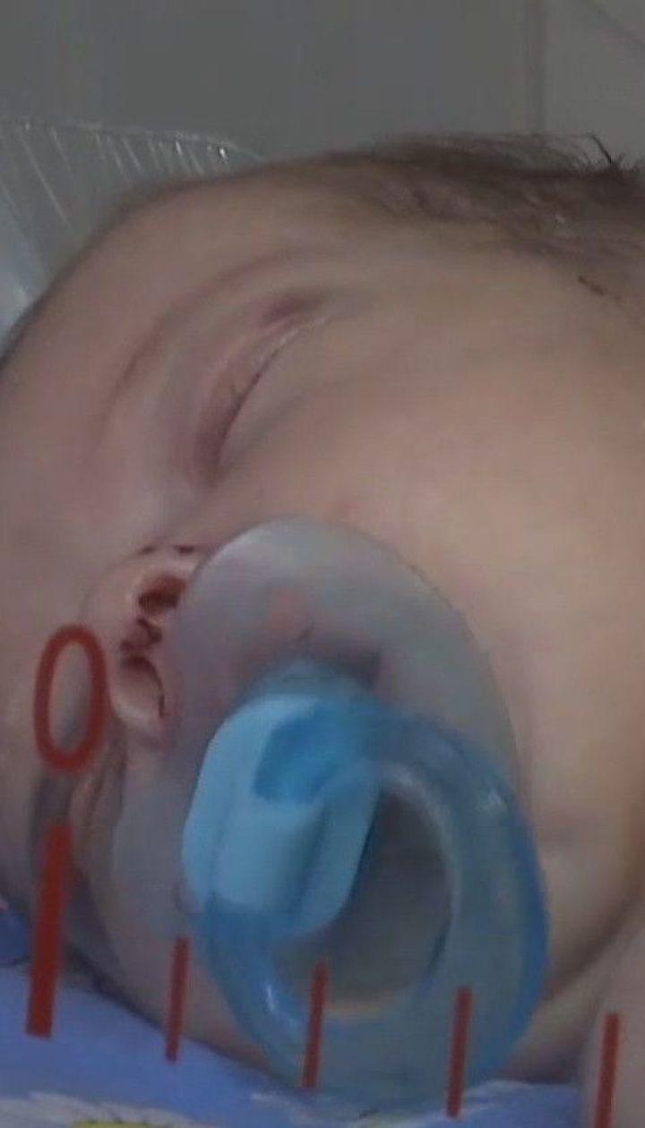 Коронавірус виявили у 9-місячного хлопчика, якому допомагала вся країна через лупцювання матері