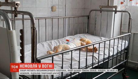 Трехлетний мальчик случайно поджег одеяло восьмимесячного брата