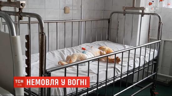 Медики стабілізували 8-місячного малюка, якого випадково підпалив братик