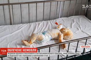 Медикам вдалося стабілізувати стан восьмимісячного хлопчика, який отримав опіки 25% тіла