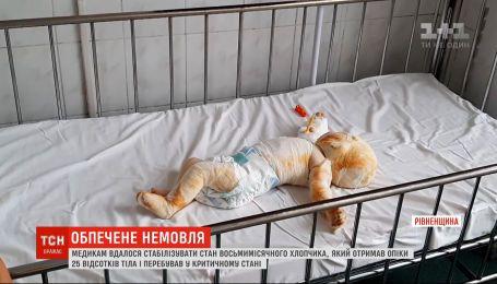Медикам удалось стабилизировать состояние восьмимесячного мальчика, который получил ожоги 25% тела