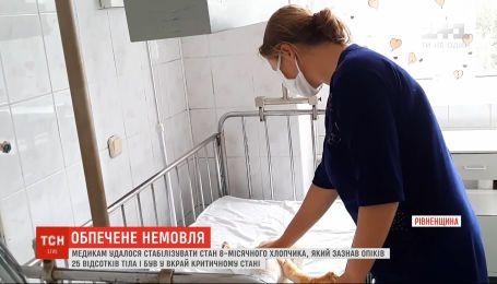 Немовля з опіками 25% тіла: медики боряться за життя хлопчика з Рівненької області