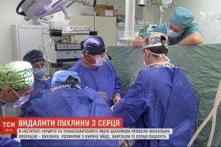 Унікальна операція: із серця чоловіка прибрали пухлину розміром з куряче яйце