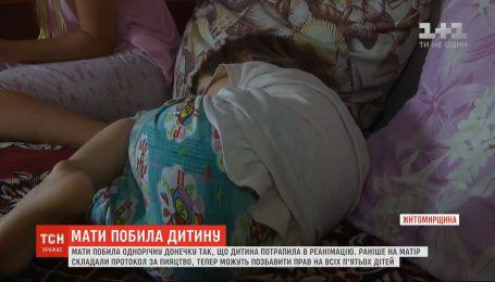 Синий ребенок: родная мать избила годовалую девочку