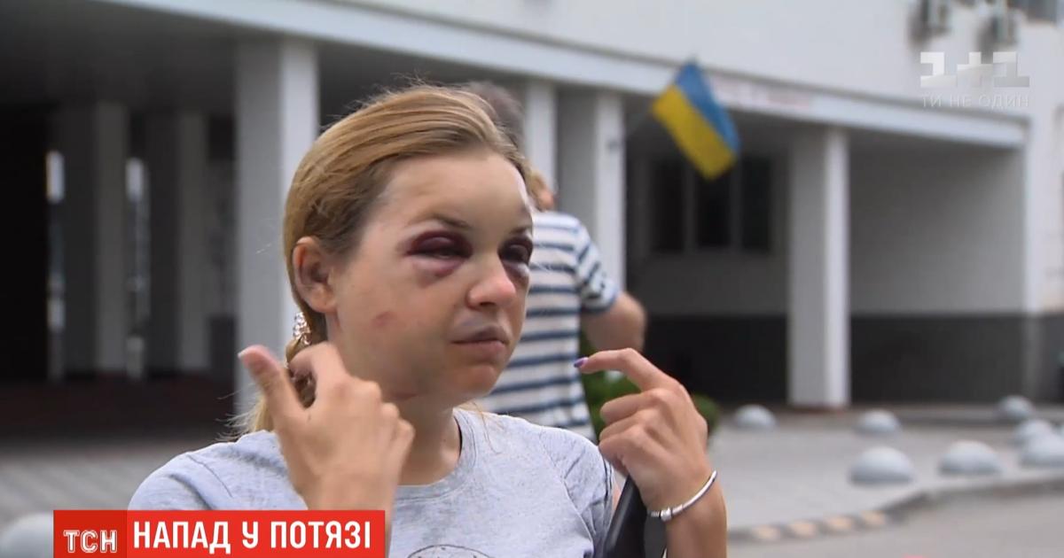 """Струс мозку, перелом щелепи, численні гематоми: потерпіла від нападу у поїзді """"Маріуполь-Київ"""" розповіла нові подробиці"""