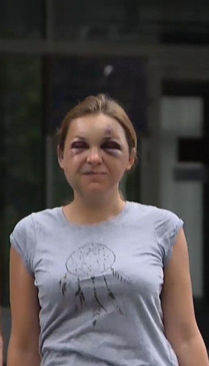 """""""Більше не можна мовчати"""": після розголосу історії про насилля у потязі, українки запустили флешмоб"""