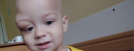 Злоякісна пухлина атакувала однорічного Дениска