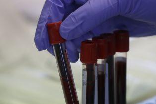 Во Львове ИФА-тестирование показало положительный результат у двух тысяч человек