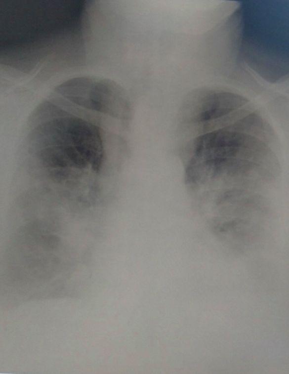 Уражені легені пацієнта