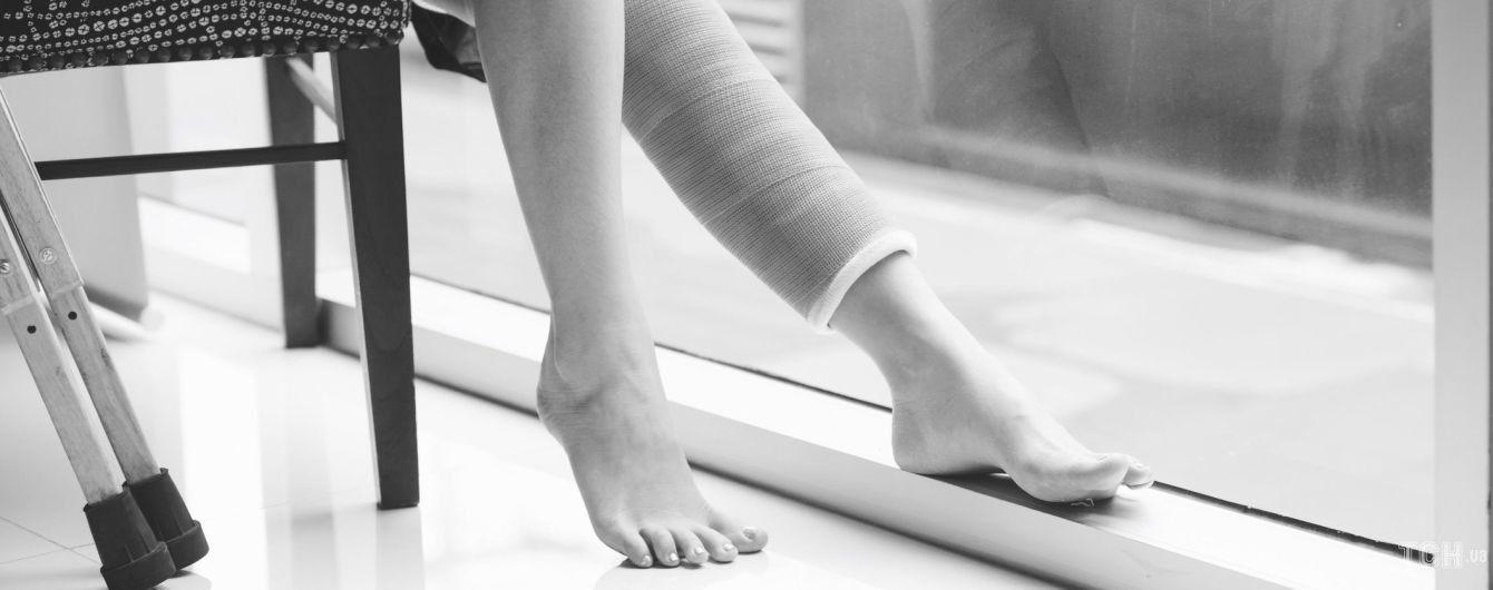 Життя з ногою в гіпсі
