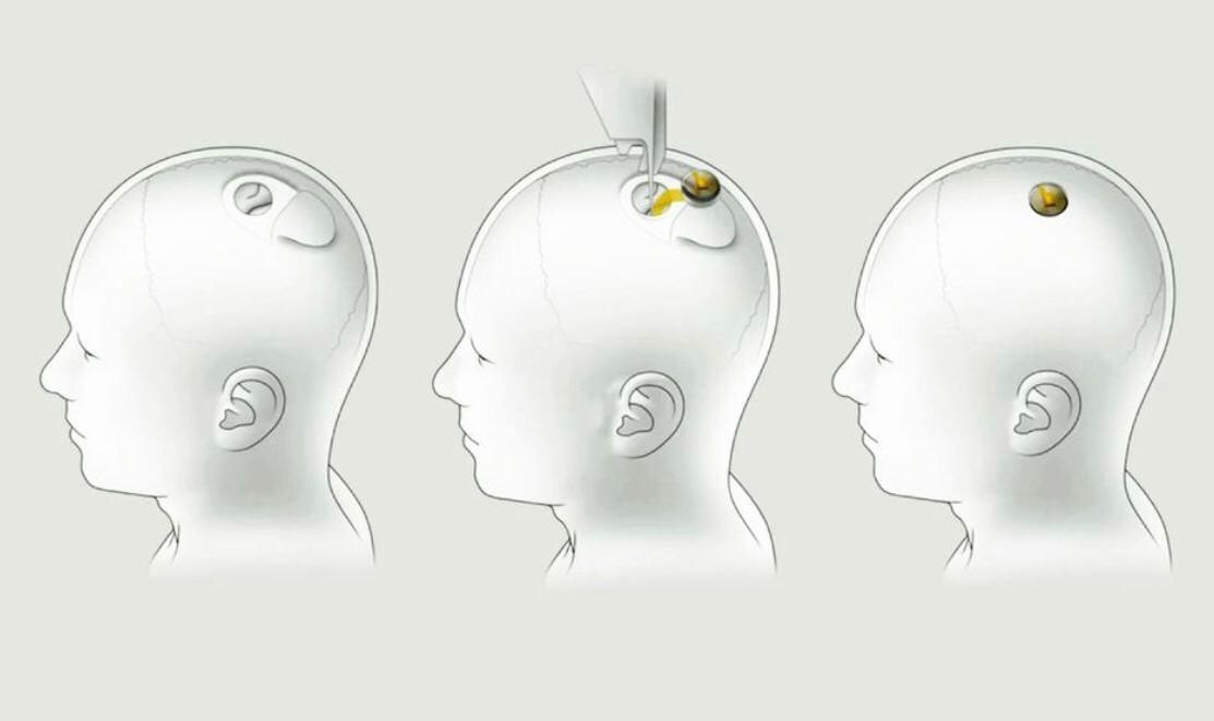 Вигляд нейроінтерфейсу Neuralink