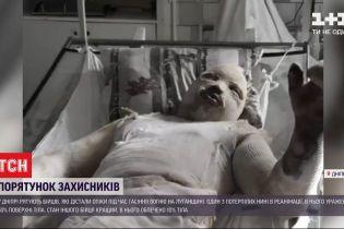 Двух военных, которые тушили пожары в Луганской области, с ожогами госпитализировали в Днепровской больницы