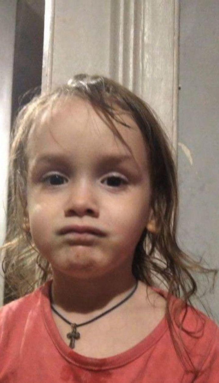 Критичні опіки: дніпровські медики борються за життя трирічної дівчинки