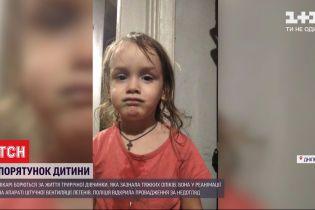 Критические ожоги: днепровские медики борются за жизнь трехлетней девочки