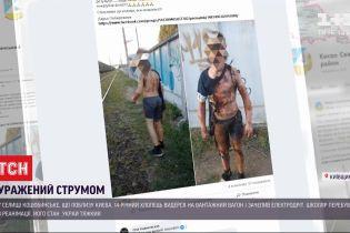 Школьник, которого накануне ударило током, находится в реанимации ожогового центра Киева