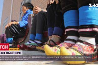 Жертви краси минулого: навіщо китайським дівчаткам перемотували стопи
