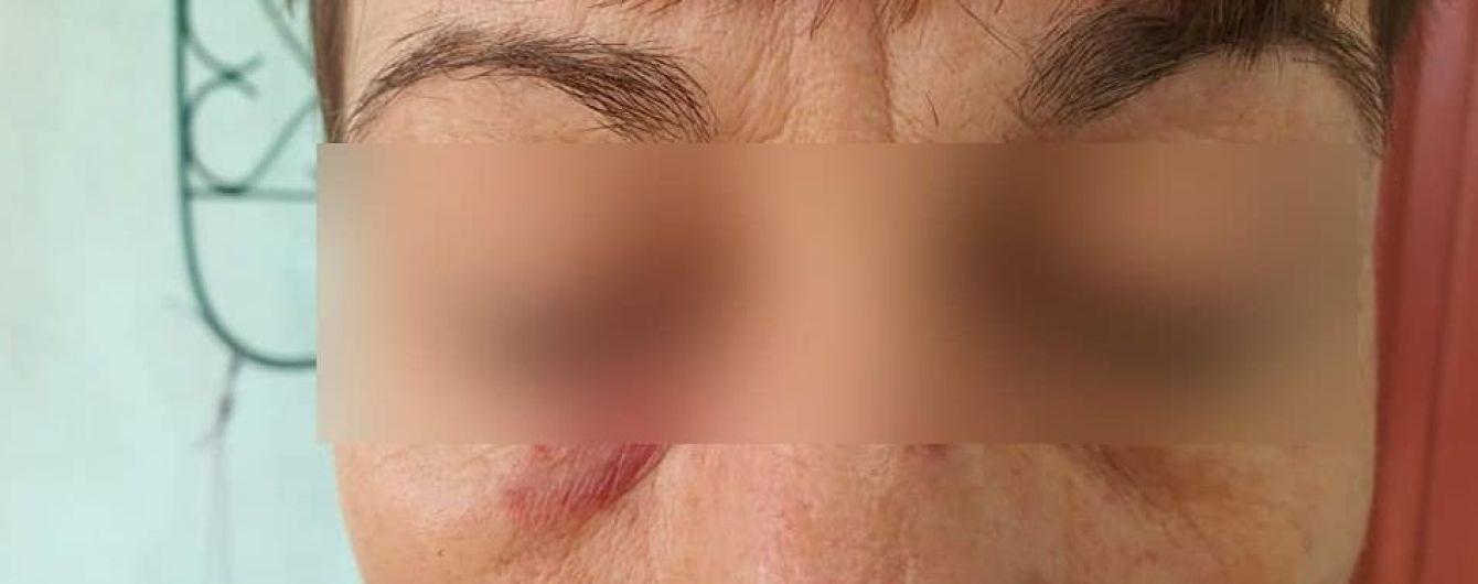 В Сумах пассажирка жестоко избила кондуктора из-за маски: фото
