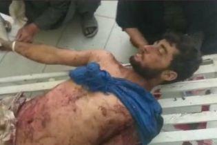В результате авиаударов ВВС Афганистана погибли десятки мирных жителей