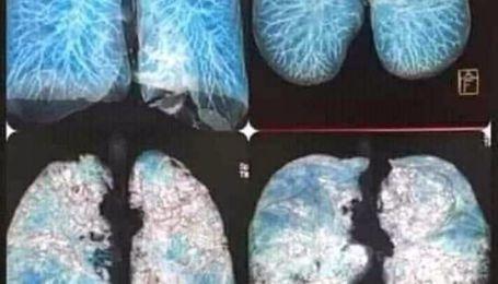 """""""Покрываются матовым стеклом"""": тернопольские медики показали, как выглядят пораженные коронавирусом легкие"""