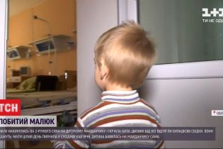 В Одесі мати побила дворічного сина на дитячому майданчику