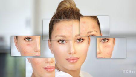 Как стереть с лица пигментные пятна: что нужно знать об отбеливании кожи
