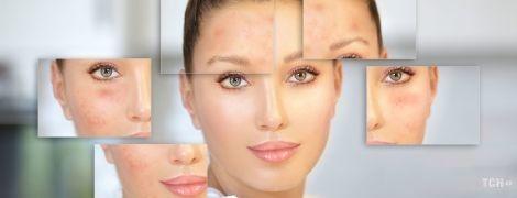 Як стерти з обличчя пігментні плями: що потрібно знати про відбілювання шкіри