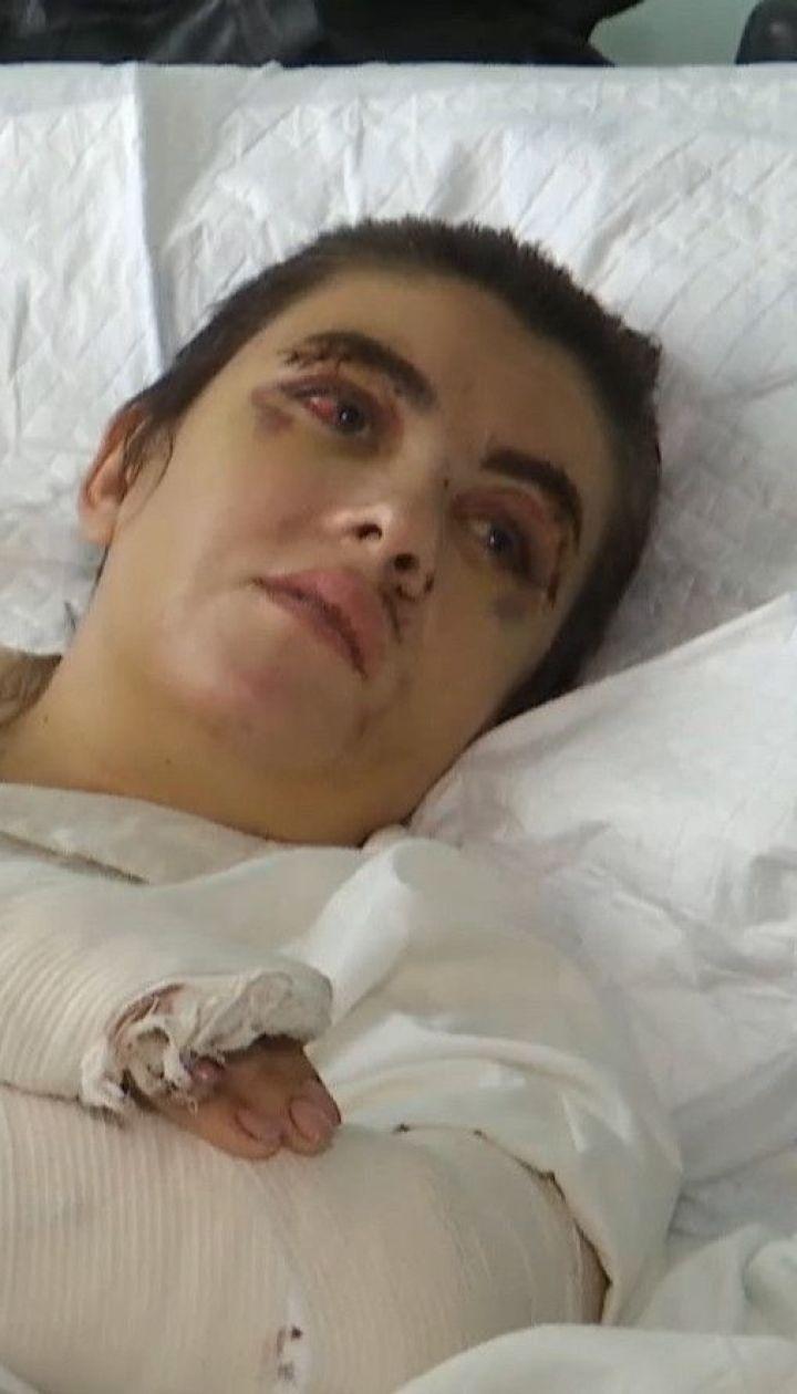 Погрожував, знущався та побив до крові: ТСН поспілкувалася із жертвою 45-річного киянина