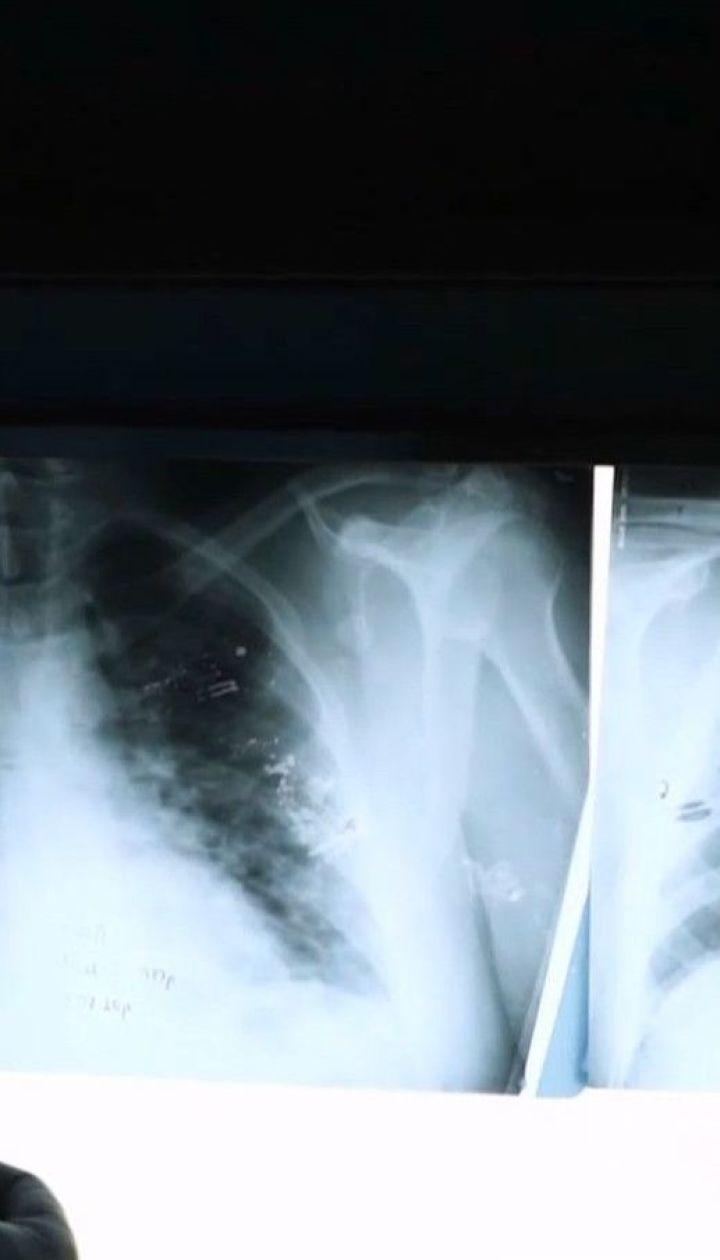 Нету диагноза - нету денег: существует ли бесплатное лечение от COVID-19