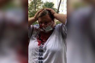 В Одессе мужчина напал на родную племянницу и поджег дом сестры