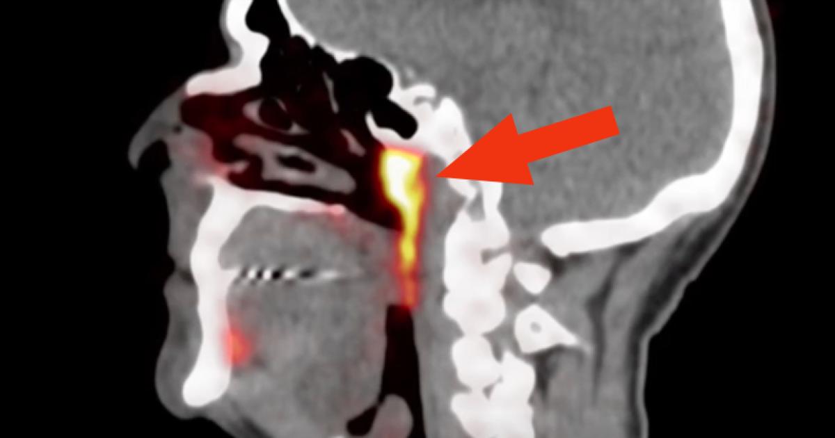 Ученые нашли неизвестный ранее орган в центре головы человека